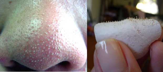 Natural blackheads removal