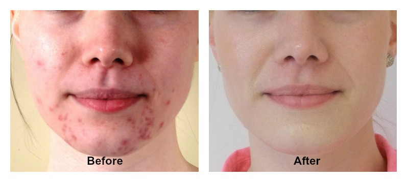 5 Tips for acne free skin