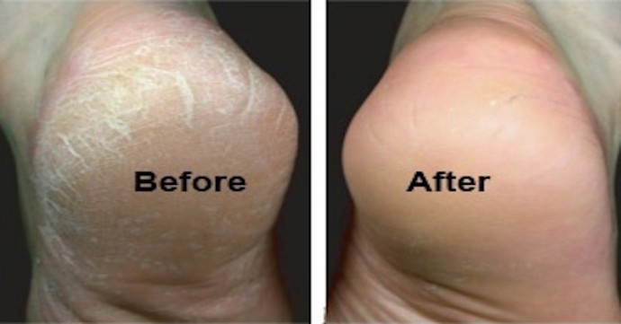 7 Important Steps To Fix Your Feet You Should Know