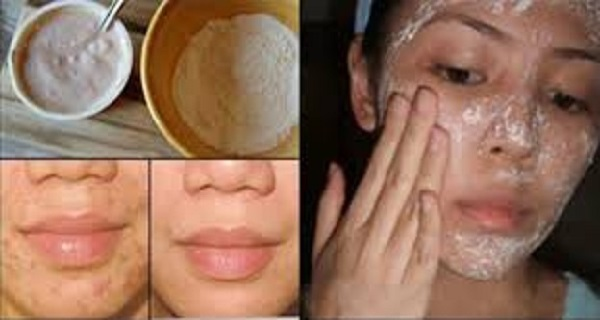 MAGICALLY REMOVE STAINS, ACNE SCARS AND WRINKLES WITH THIS FACE MASK JUST AFTER THE SECOND USE!!!