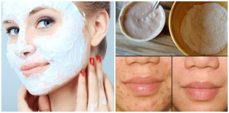 This Face Mask Magically Removes Stains,Acne Scars And Wrinkles After Second Use