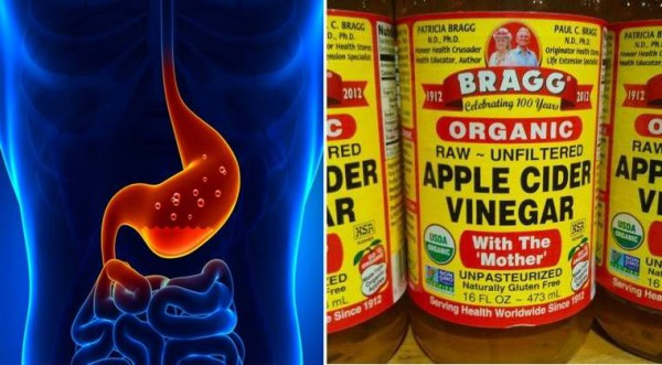 1 Tbsp of Apple Cider Vinegar for 60 Days Can Eliminate These Common Health Problems