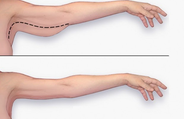 BEST EXERCISE TO LOSE ARM FAT AT HOME