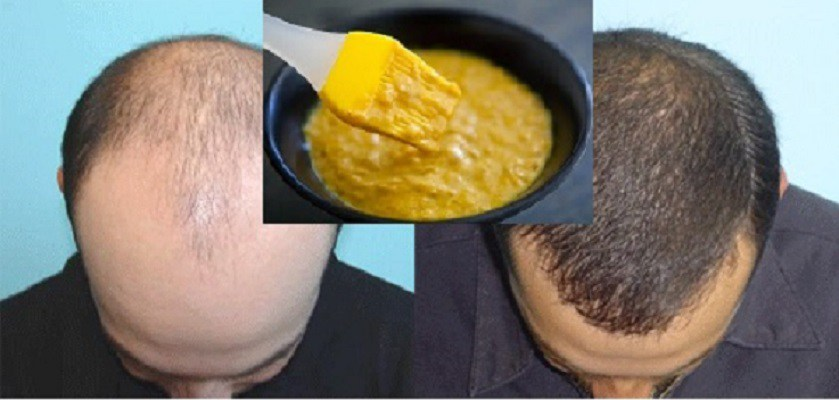 Extremely Effective Homemade Mask for Hair Growth!