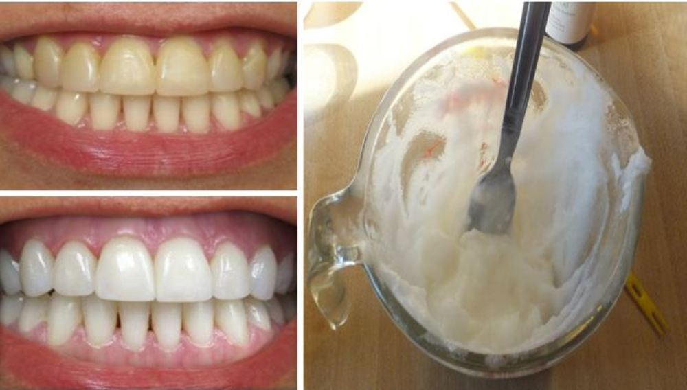 HOW TO WHITEN TEETH NATURALLY AT HOME WITH 2 INGREDIENTS