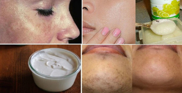 These Are The Best Natural Home Treatments For Eliminating Black Spots Forever!
