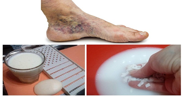 MAGICAL RECIPE FOR VARICOSE VEINS AND THROMBOSIS WITH ONLY 2 SIMPLE INGREDIENTS
