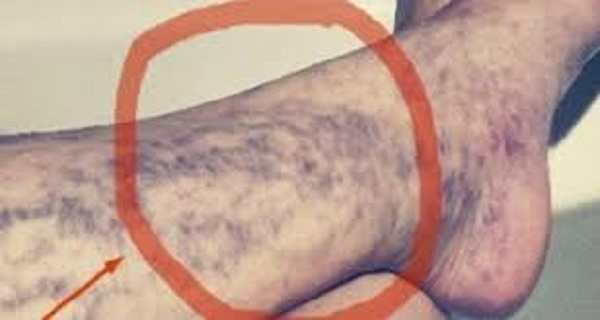 EVERYONE HAS THE CURE FOR VARICOSE VEINS AT HOME, BUT MANY PEOPLE DO NOT KNOW ABOUT IT!