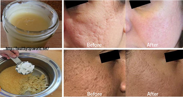 POWERFUL HOMEMADE CREAM TO GET RID OF SCARS COMPLETELY WITHIN 2 WEEKS!