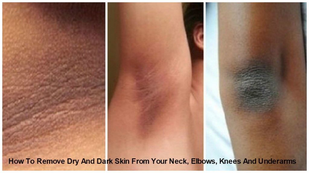 How To Get Rid Of Skin Pigmentation Naturally